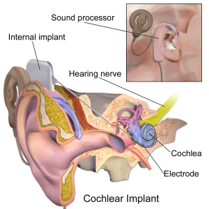 600px-Blausen_0244_CochlearImplant_01